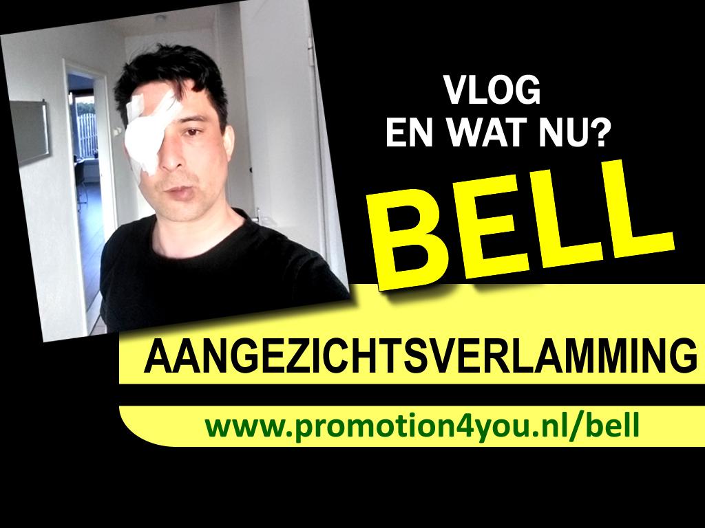 Aangezichtsverlamming van Bell